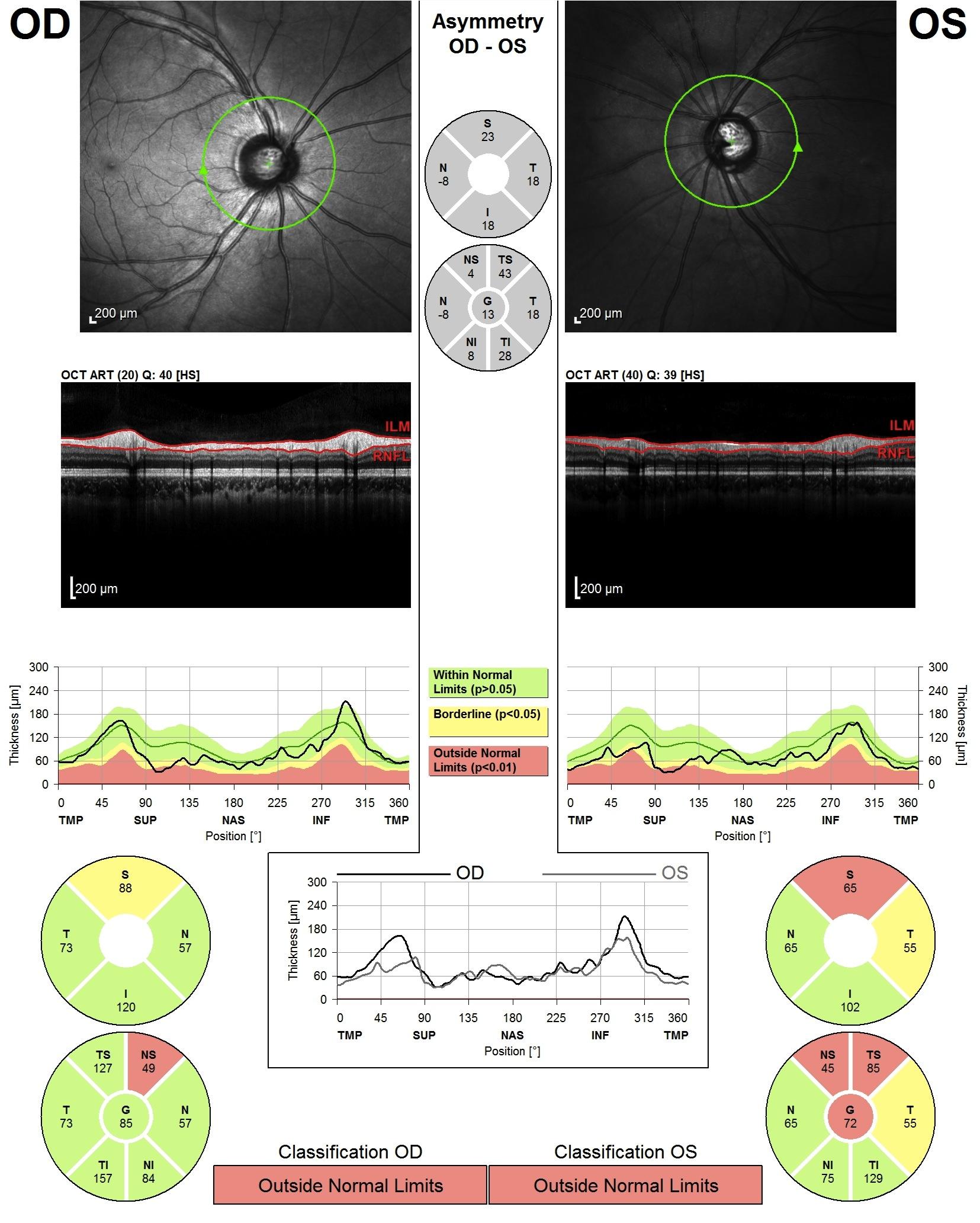 OCT dans le glaucome Photo d'un tracé OCT
